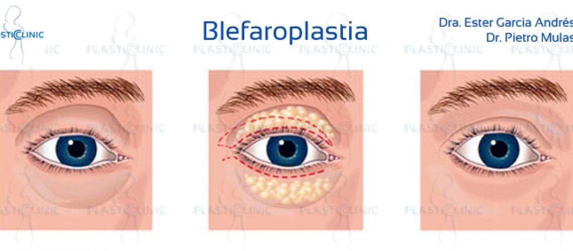 recuperación post blefaroplastia