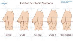 mastopexia grados de ptosis